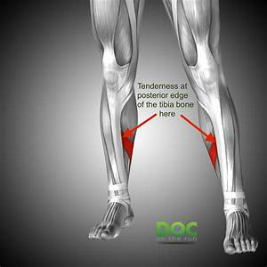 Shin Splints  What To Do If Your Shin Splints Won U0026 39 T Go