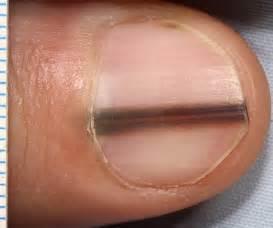 melanoma under nail bed