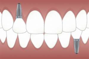 From Implant Abutment To Crowns  Your Guide To Dental Implants