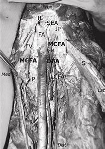Illustration Of A Case With Medial Circumflex Femoral Artery  Origin