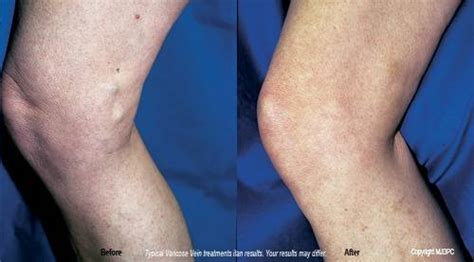Varicose Vein Treatments  Marlton Nj  Dermatologist. Minnesota Car Insurance Quotes. Can I Call My Phone From The Internet. Provident Funding Loans Varicose Veins Removal. Personal Injury Attorney San Diego Ca. Downtown Hong Kong Hotels Source Code Checker. Aspiration Abortion Cost 2015 Ford Atlas F150. Frederick Pilot Middle School. Exchange 2007 Certificate Coding Schools Nyc