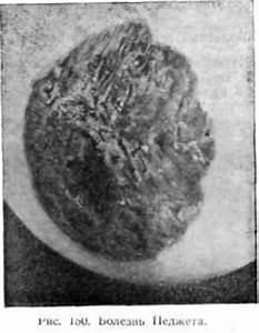 Бородавки на половом органе женщины лечение