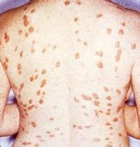 sarcoidosis natural treatment stretch marks