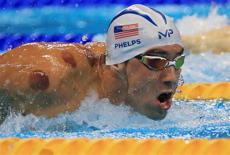 cupping therapy benefits explained  michael phelps
