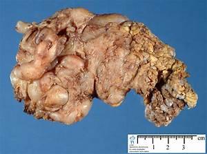 neurofibromatosis type 1 - Humpath.com - Human pathology
