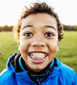 Early Orthodontics  Age 7