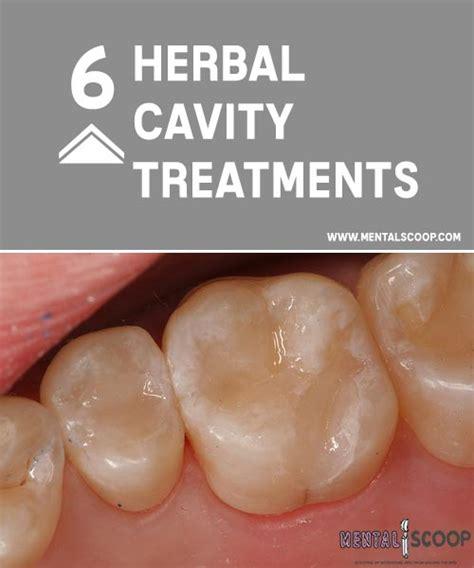 herbal cavity treatments mental scoop