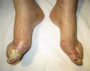 A Dercription Of Gout How It Can Be Treated  What Causes