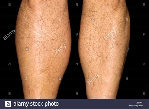 deep vein thrombosis stock photo alamy