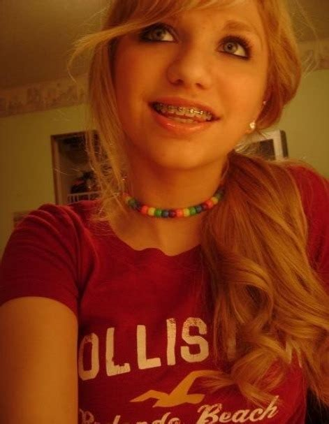 Girl With Braces On Tumblr
