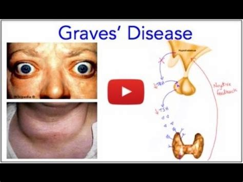 Graves' Disease  Hyperthyroidism  Everything You Need To. Card Game Signs Of Stroke. Flight Signs. Sintomas Signs Of Stroke. Someone Signs. Chance Signs. Wellness Signs. Downloadable Ucm Signs Of Stroke. Kabbalah Signs Of Stroke