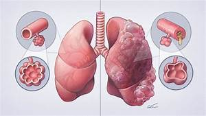 Painting A Medical Illustration For Tv  Healthy Vs Copd