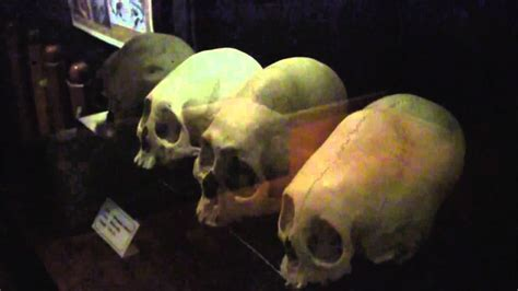 Different Types Of Elongated Skulls Found