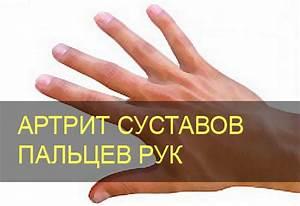 Болят суставы рук локоть