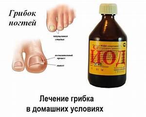 Как победить грибок ногтей ног