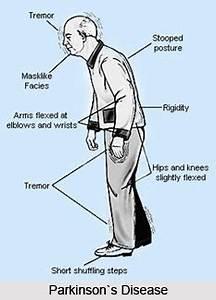 Gut Health Parkinson U0026 39 S Disease