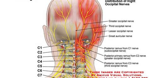Occipital Neuralgia...the most recent diagnosis to add to