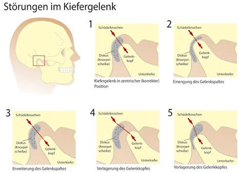 Zahnmedizinisches Zentrum Paderborn zahnmedizinisches zentrum paderborn zahnarzt paderborn