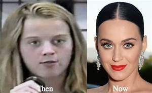 Celebrities Plastic Surgery: Katy Perry Before And After