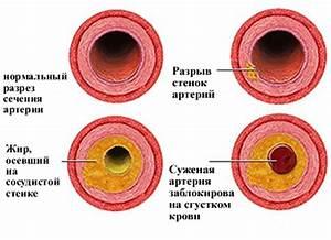 Хобл и гипертония