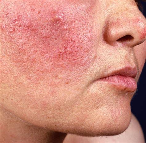 dermatologie wenn die akne im winter richtig aufblueht welt