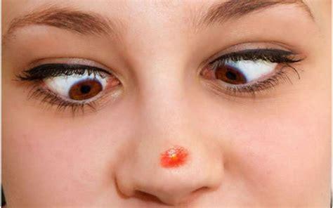 voici ce  les boutons de votre visage revelent sur