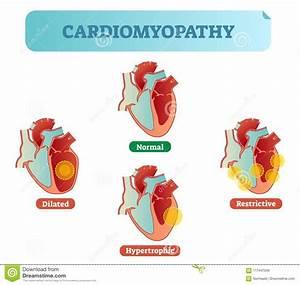 Cardiomyopathy Medical Disorders Cross Section Diagram