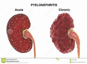 Acute And Chronic Pyelonephritis  Medical Concept Stock Illustration