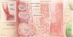 Barrett Esophagus And Risk Of Esophageal Cancer  A