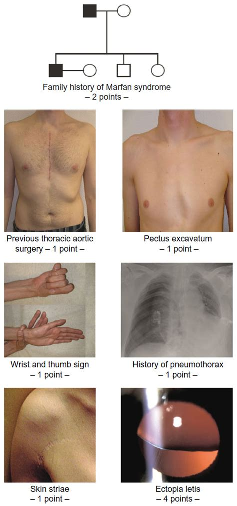 show   pictures  marfan syndrome htq