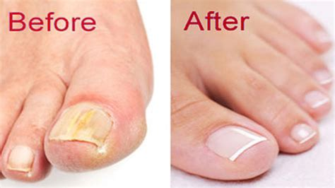 How to Get Rid of Toenail Fungus, Swimmers Ear