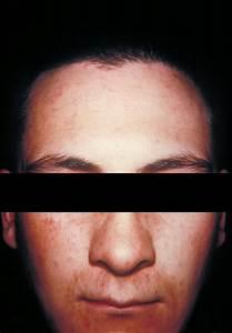 German Measles On Face | www.pixshark.com - Images ...