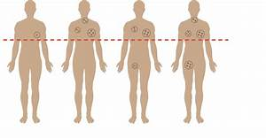 Hodgkin Lymphoma Above And Below The Diaphragm  Are The