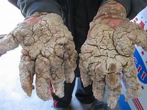 Here's an interesting disease.