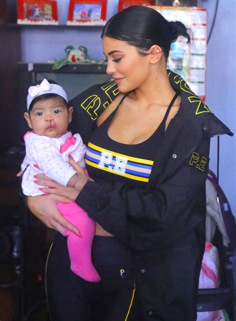 Cleft Lip Charity We Work Jenner Visits Children With Cleft Lip And Palate