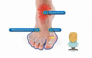 pain relief from gout in the foot