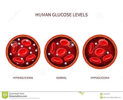 hyperglycemia cartoons illustrations vector stock