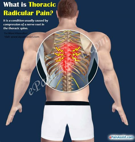 Thoracic Radicular Paincausessymptomstreatment. Renters Insurance Quote Online. Desktop Management Interface. Washington State University Locations. Masters Of Human Resource Management. T3 Internet Connection What Is A Va Home Loan. Proposal Essay Topic Ideas Miami Jet Charter. Chiropractor Fort Collins Car Electric Hybrid. How To Make Espresso Without A Machine