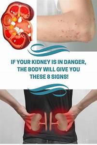 If Your Kidney Is In Danger  The Body Will Give You These