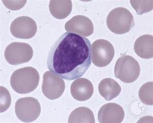 Atypical Lymphocytes