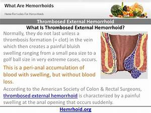 Pics For > Non Thrombosed Hemorrhoids