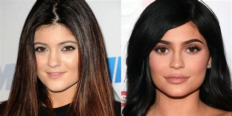 kylie jenner age height net worth cars plastic surgery