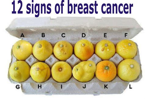 12 Signs Of Breast Cancer Tips And Tricks