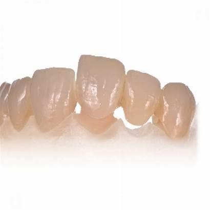 Celtra Crown Press Bridge Dental Metal Strength