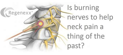 radiofrequency ablation for neck pain
