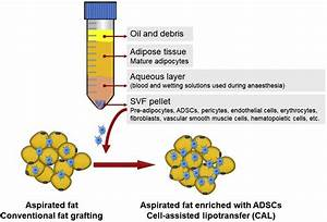 Lipoaspirate Components And Enrichment Of The Aspirated