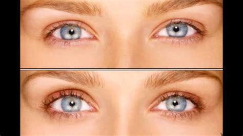 latisse eye color change will latisse make your change color realself
