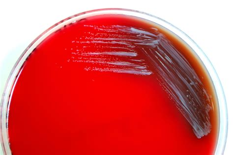 Free picture: brucella abortus, bacteria, grown, sheep, blood agar
