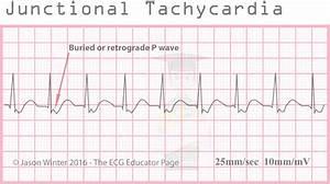 ECG Educator Blog : Junctional Rhythms