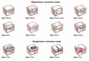 Вирус папилломы симптомы лечение